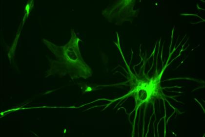 Ученые смогли включить нейрогенез в поврежденном спинном мозге